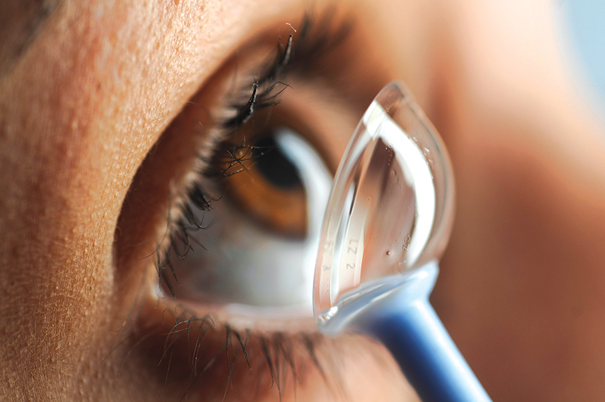 Keratoconus: Causes, Symptoms, Diagnosis, and Treatment