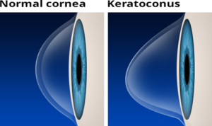 Everything Eyes treats Keratoconus